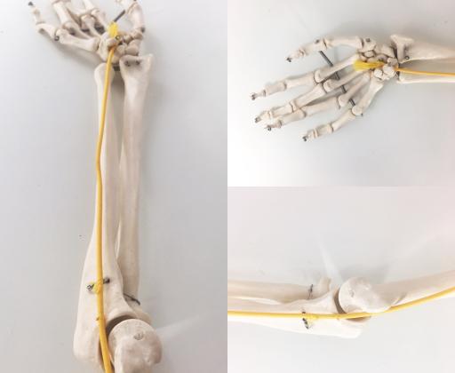 nerw-lokciowy