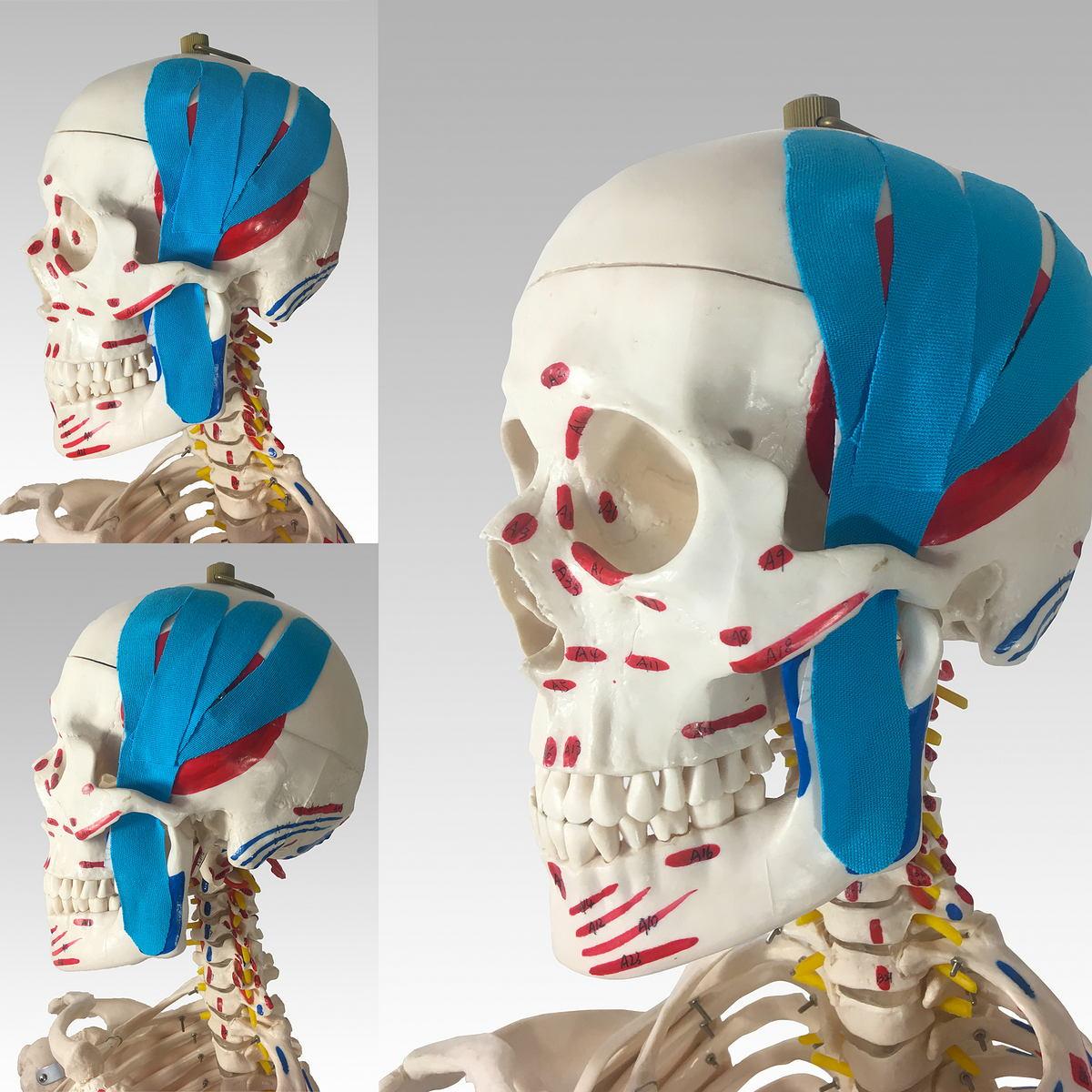 miesien-skroniowy-anatomia