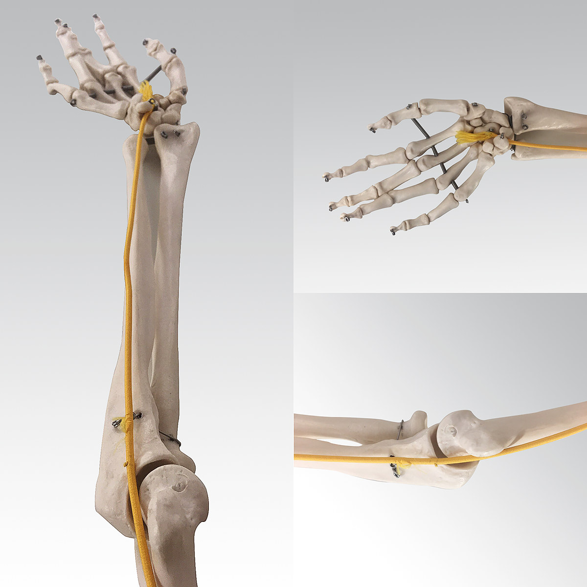 nerw-lokciowy-krzeslo